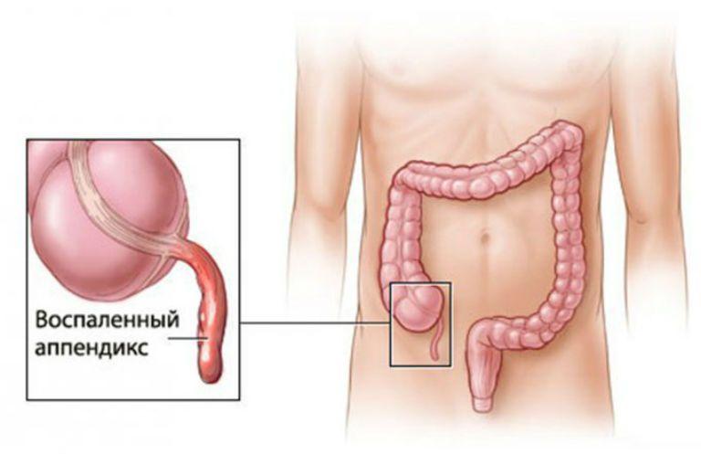 Признаки аппендицита у мужчин, симптомы, описание