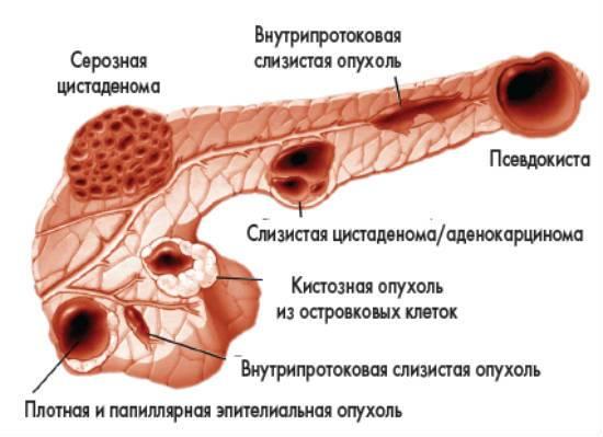 Диффузные изменения поджелудочной железы что это и как лечить