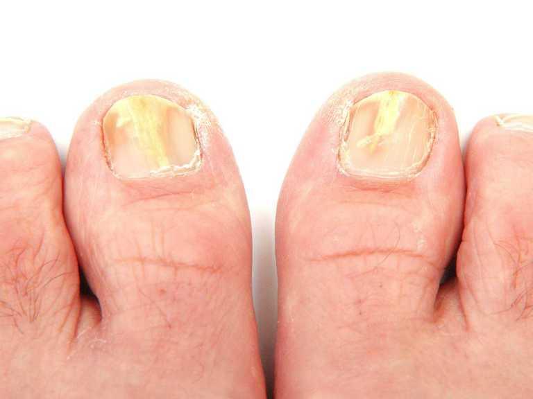 Лечение грибка ногтей в домашних условиях, самый быстрый способ