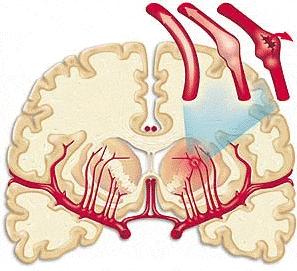 Геморрагический вид инсульта