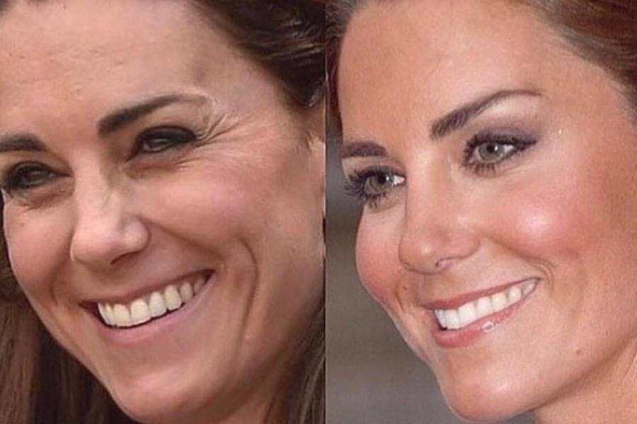 Феноловый пилинг: фото до и после