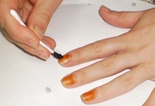 лечение грибка на ногтях в домашних условиях йодом