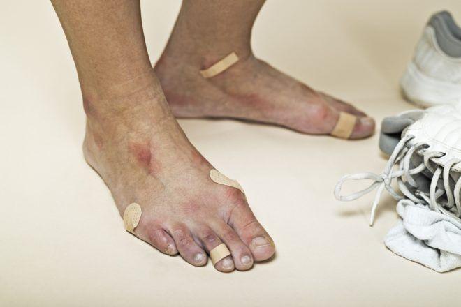 Обувь вызывает экзему на ногах