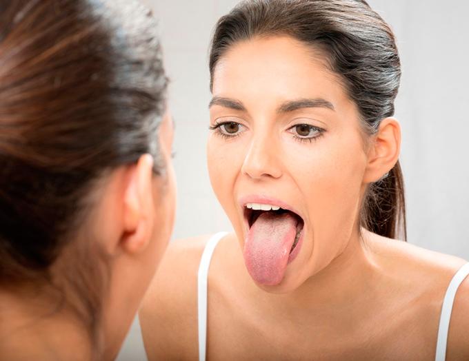 Что значит белый налет на языке у взрослых? Лечение и причины