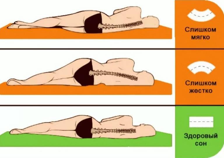 Шейно-грудной остеохондроз, симптомы и лечение в домашних условиях