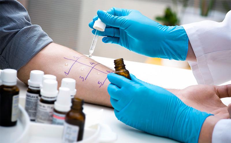 Диагностика и лечение хронической крапивницы
