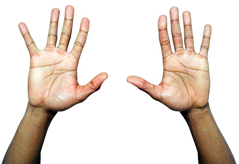 Адекватное лечение дисгидроза кистей рук