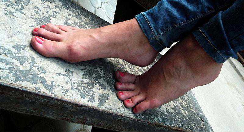 В чем заключается эффективная терапия бородавок на ногах?