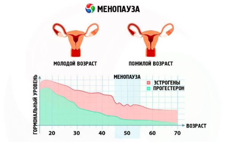 Вегетососудистая дистония симптомы и лечение у женщин