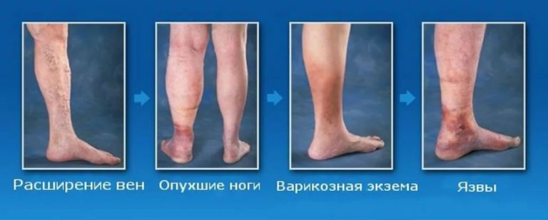 Варикозная болезнь нижних конечностей