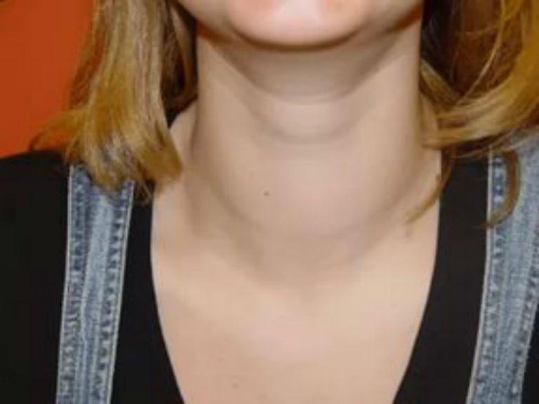 Щитовидная железа, симптомы заболевания у женщин, внешние признаки