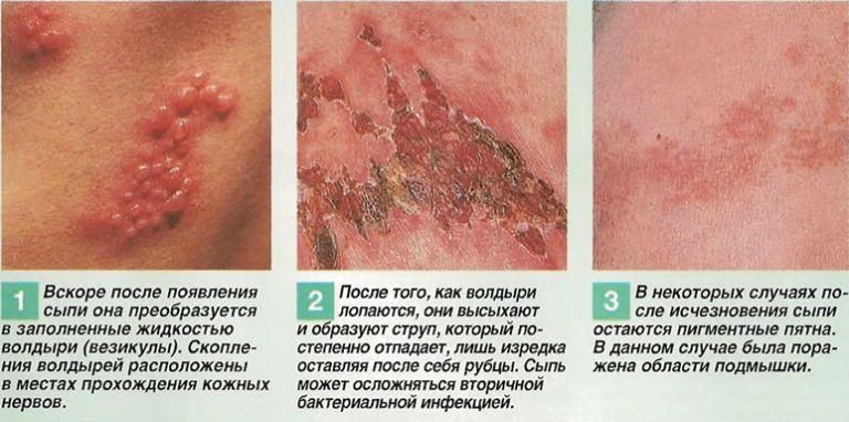 Как выглядит пораженный недугом кожный покров на голове, фото, и на лице