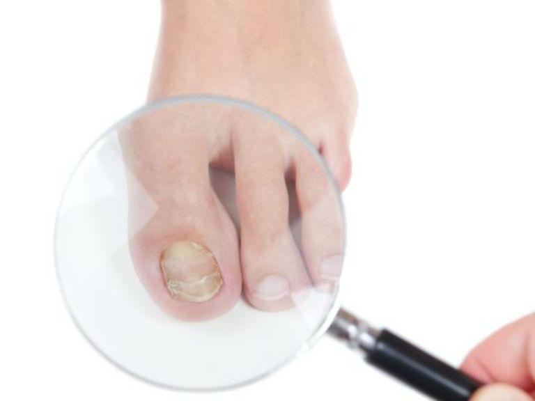 Лечение грибка ногтей на ногах, препараты