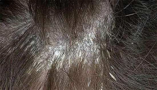 Правильное лечение себорейного дерматита волосистой части головы. Рецепты народной медицины