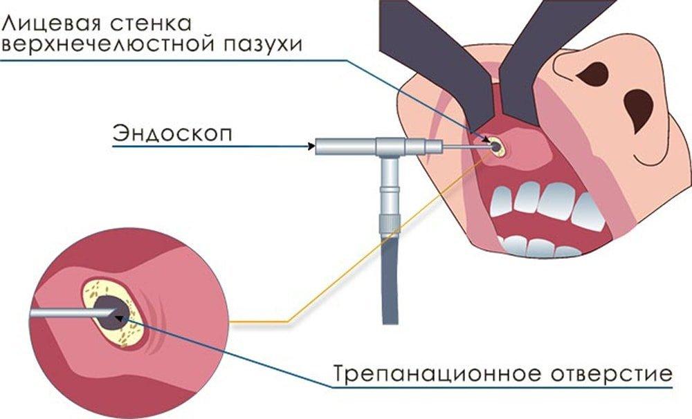 перфорация гайморовой пазухи при удалении зуба лечение