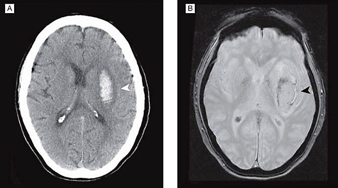 МРТ при геморрагическом инсульте