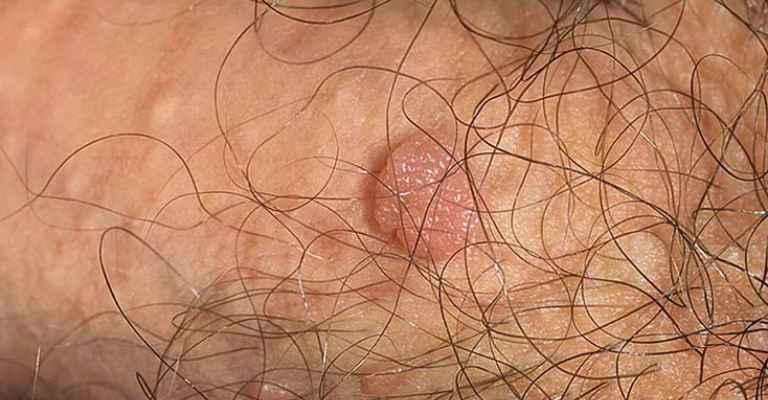 Что такое папиллома и как она выглядит