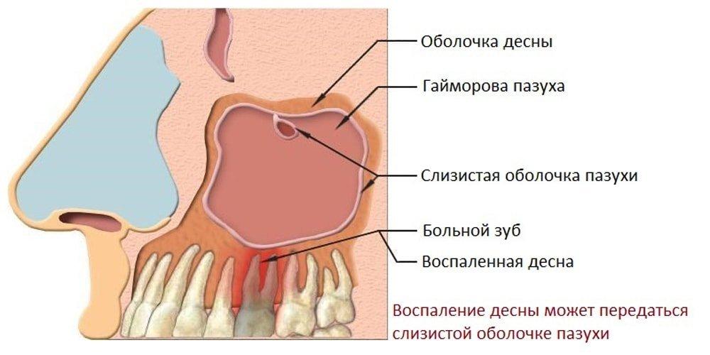 гайморит от зуба
