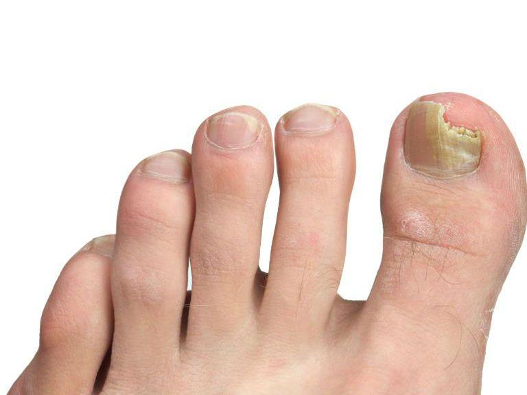Как вылечить грибок ногтей на ногах в домашних условиях быстро
