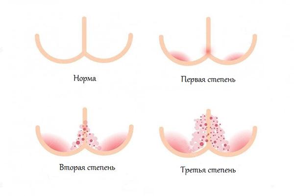 Стадии пелёночного дерматита