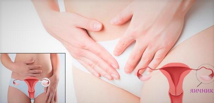 Все причины боли яичнике у женщин