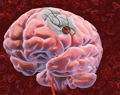 сосудистая деменция после инсульта