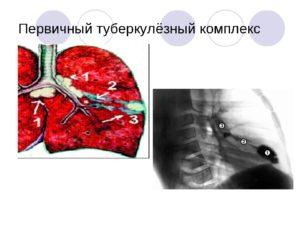 Первичный туберкулезный комплекс в легких