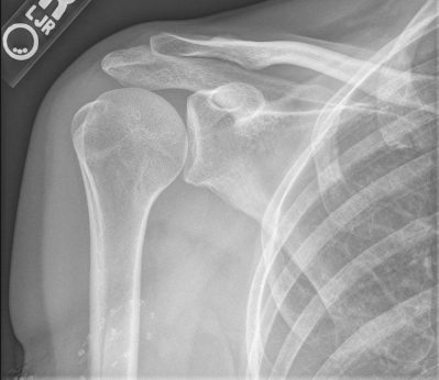 rentgen-plecha