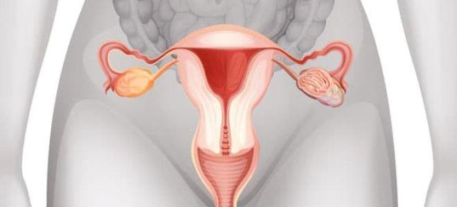 Что такое миома матки и как ее лечить?