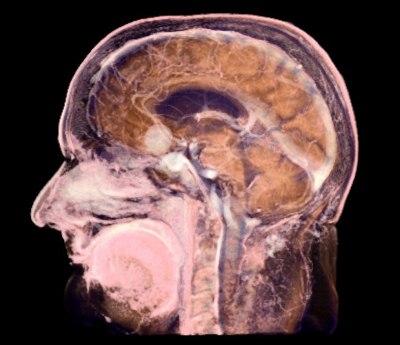 kt-golovnogo-mozga