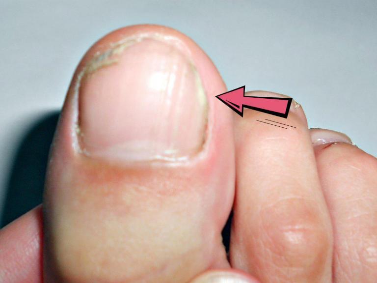 Грибок на ногтях ног, лечение народными средствами