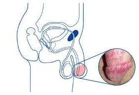 Причины и лечение кандидоза полового члена