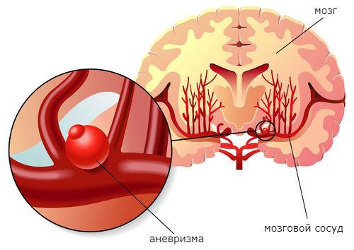 геморрагический инсульт при аневризме
