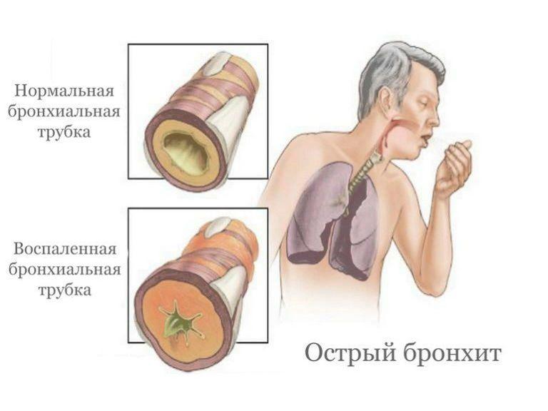 Острый бронхит, симптомы и лечение у взрослых