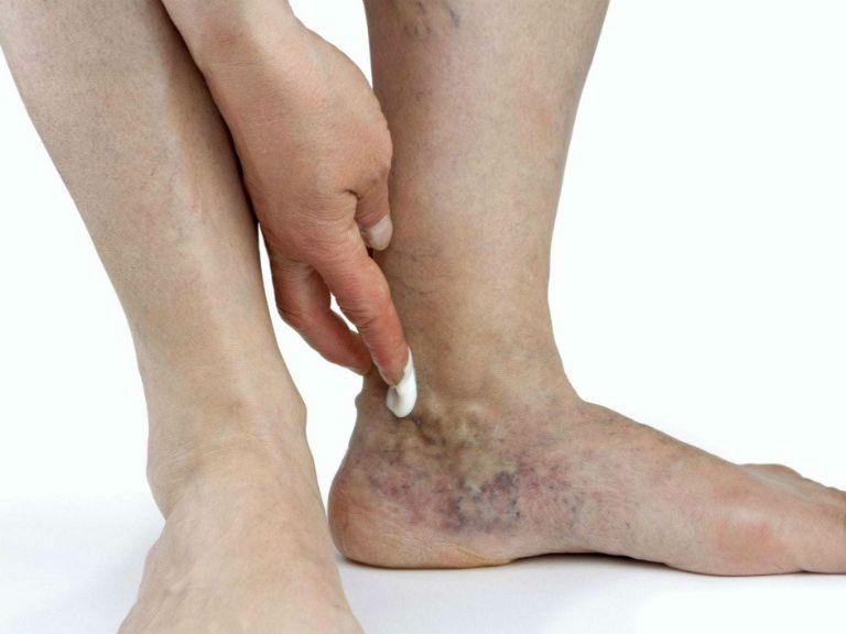 Варикозное расширение вен на ногах, причины