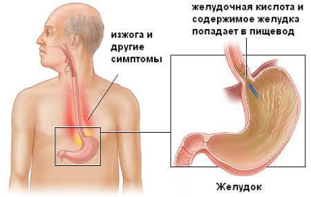 Рефлюкс и его симптомы