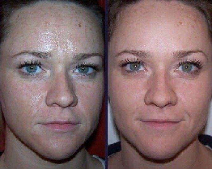 Отзывы с фото до и после о пилинге Джесснера