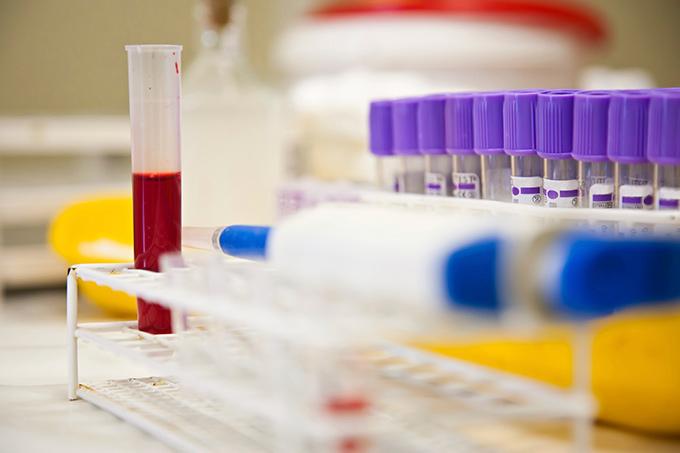 Какие анализы сдавать при панкреатите? Что покажет кровь, моча и биохимический анализ?