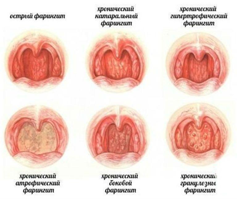 Фарингит, симптомы и лечение у взрослых в домашних условиях