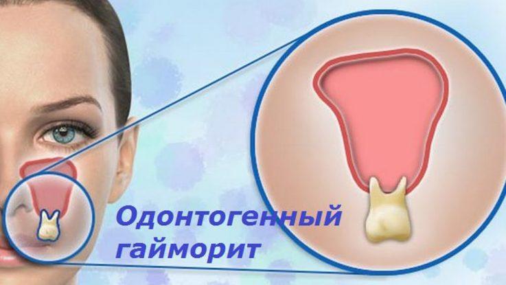 болят зубы при гайморите