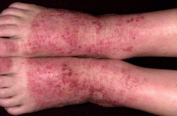Аллергический дерматит на ногах