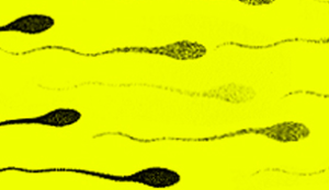 желтая сперма у мужчин