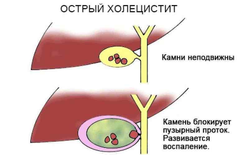 Что такое холецистит и его симптомы, лечение