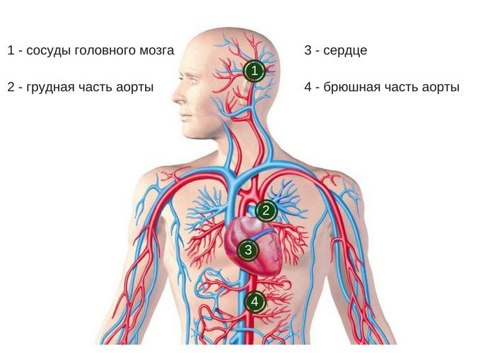 Локализации аневризм