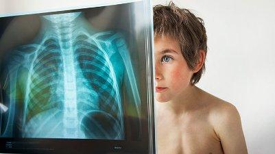 rentgen-legkih