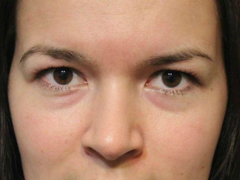 Мешки под глазами, причины и лечение у женщин