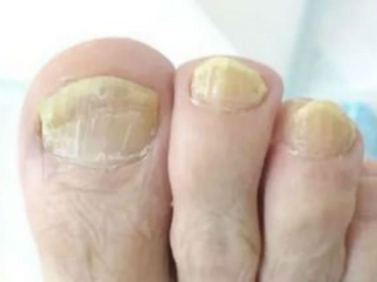 Грибок ногтей на ногах чем лечить в домашних условиях