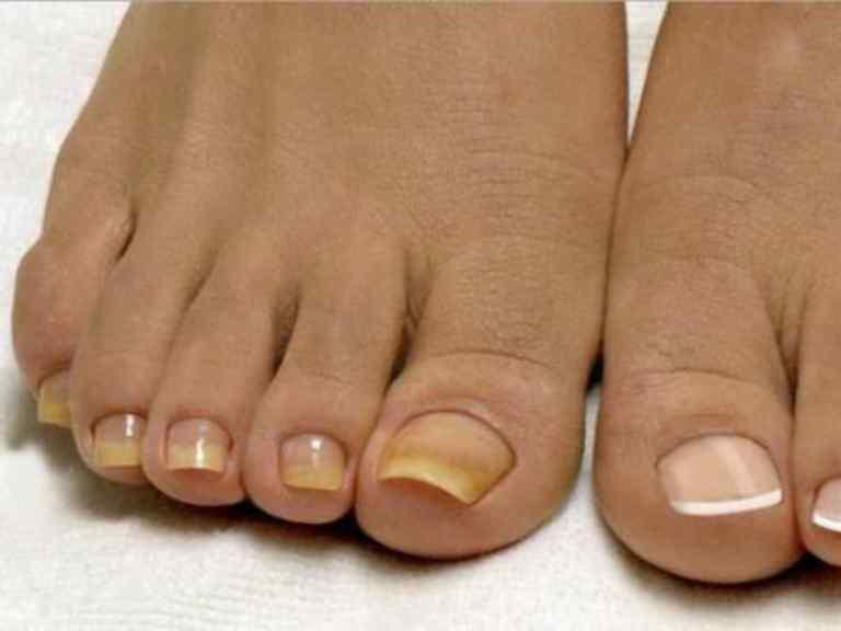 Лечение грибка ногтей в домашних условиях народными средствами