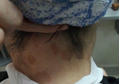 Почему появляются пигментные пятна на шее и что делать
