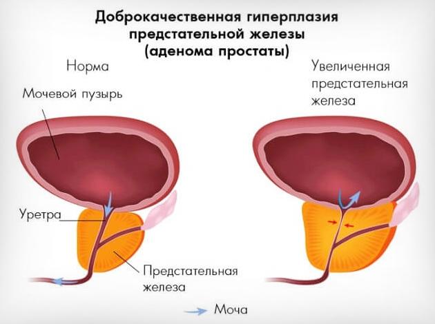Хр простатит и дгпж лечение простатита аппаратом turapy